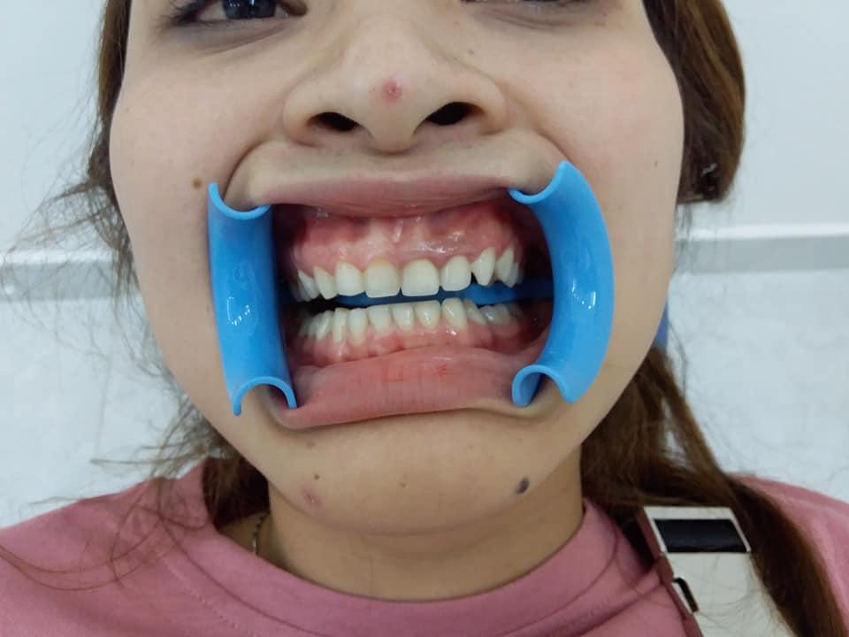chị Hiền sống tại Thủ Đức làm răng Toàn sứ Zirconia tại Nha Khoa Titan Bình Thạnh