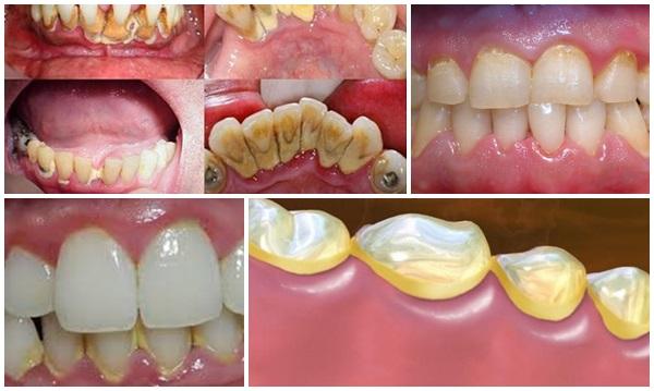 Giá lấy vôi răng