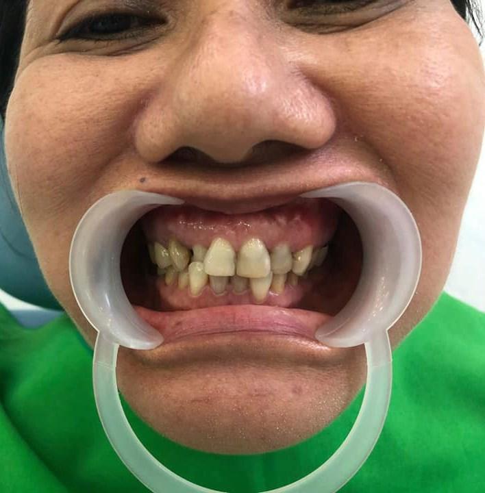 Hình ảnh khách trước khi làm răng zirconia