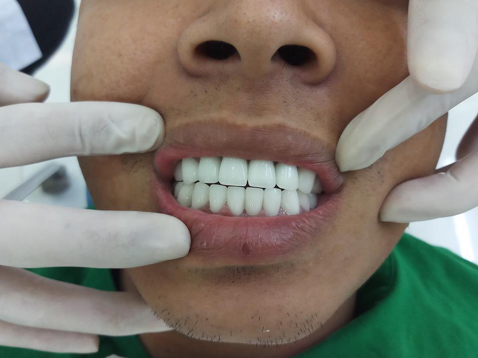 Anh Huy ở Thủ Đức làm răng sứ tại Nha Khoa TiTan