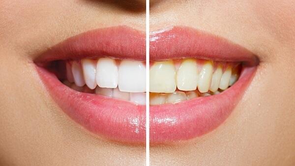 những điều lưu ý khi tẩy trắng răng