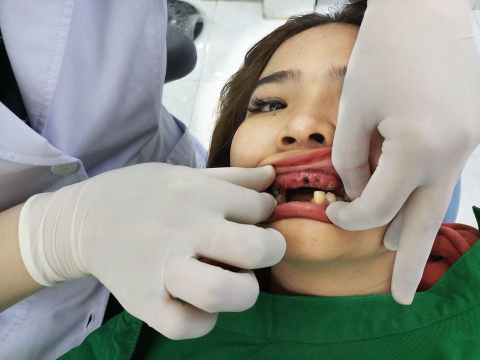 Chị Loan khách hàng làm răng zirconia đến từ quận 12