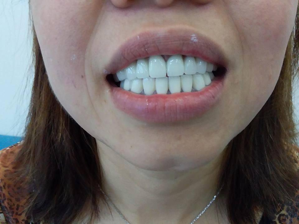 hình ảnh sau khi làm răng sứ