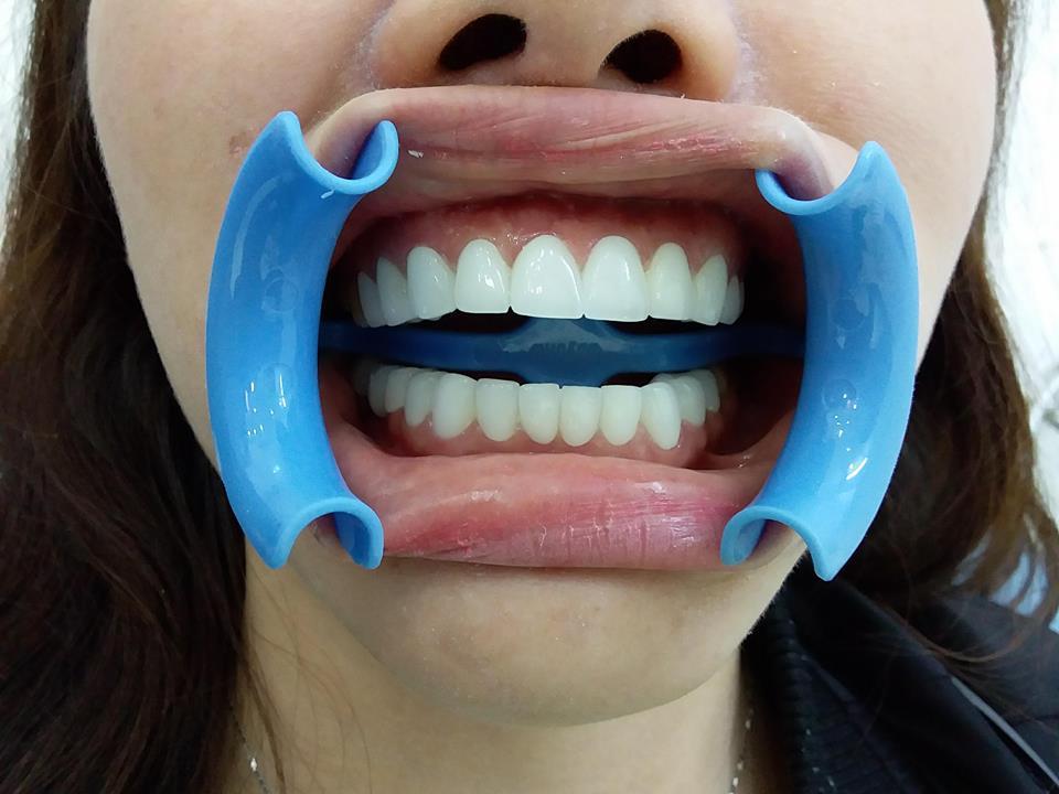 Răng sứ Zirconia của chị Tường Vy gò vấp