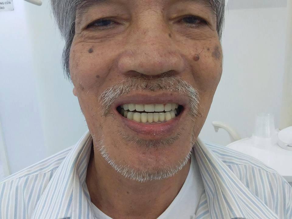 Chú Bình ở khu vực bình thạnh làm răng sứ mỹ