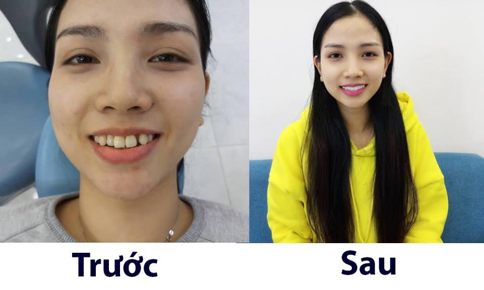 hình ảnh trước và sau khi trồng răng sứ cercon
