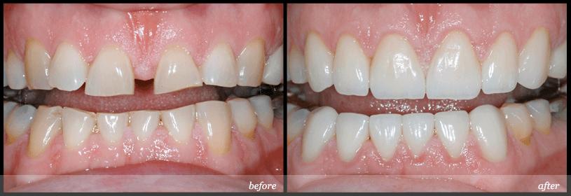 Răng sứ Cercon có tốt không và độ bền duy trì được bao lâu? 1