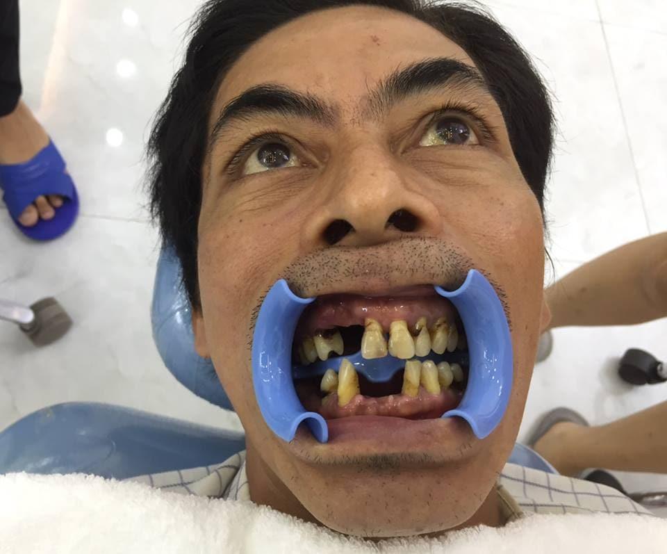 Anh Khang , khách hàng làm răng sứ Mỹ
