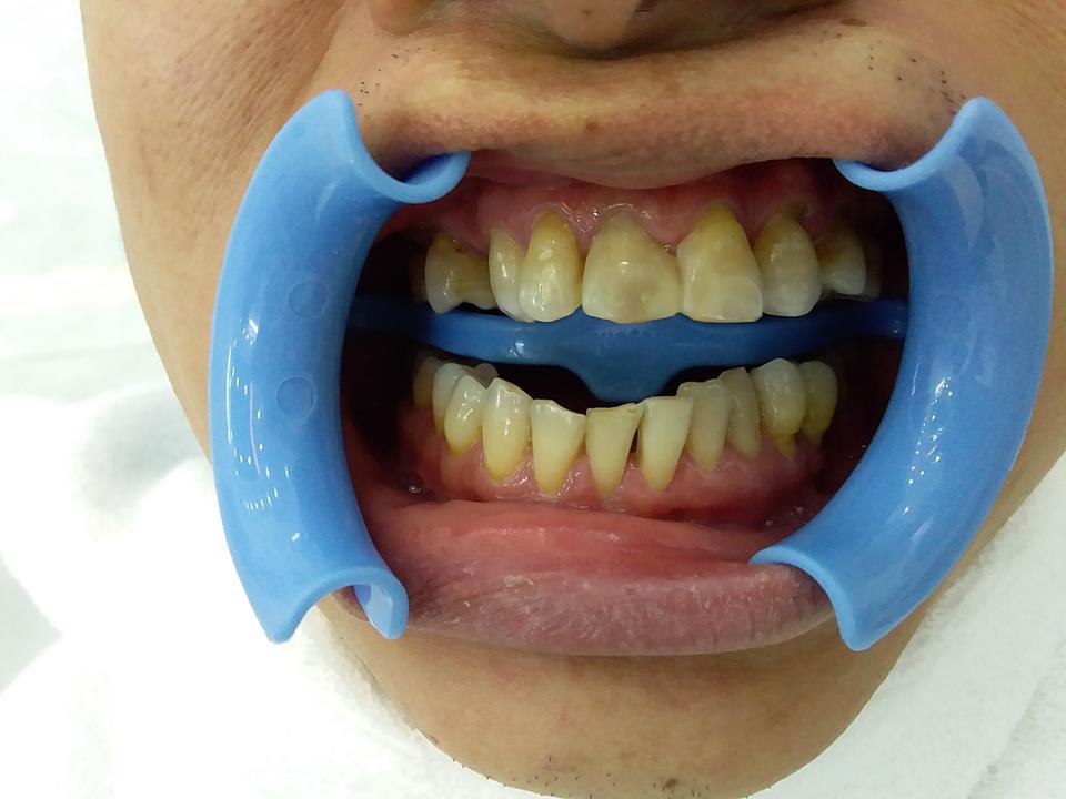 khách hàng làm răng zirconia tại bình thạnh