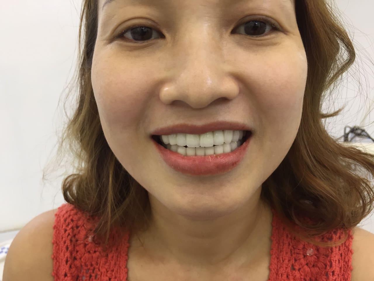 Chị yến Phi làm 28 răng zirconia