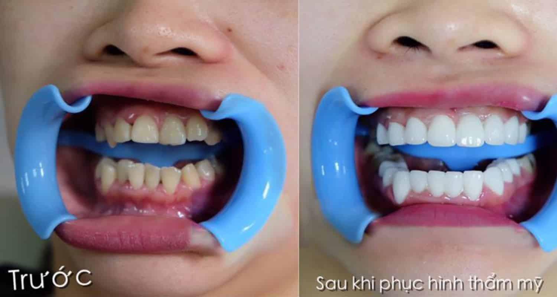 nha khoa bọc răng sứ uy tín
