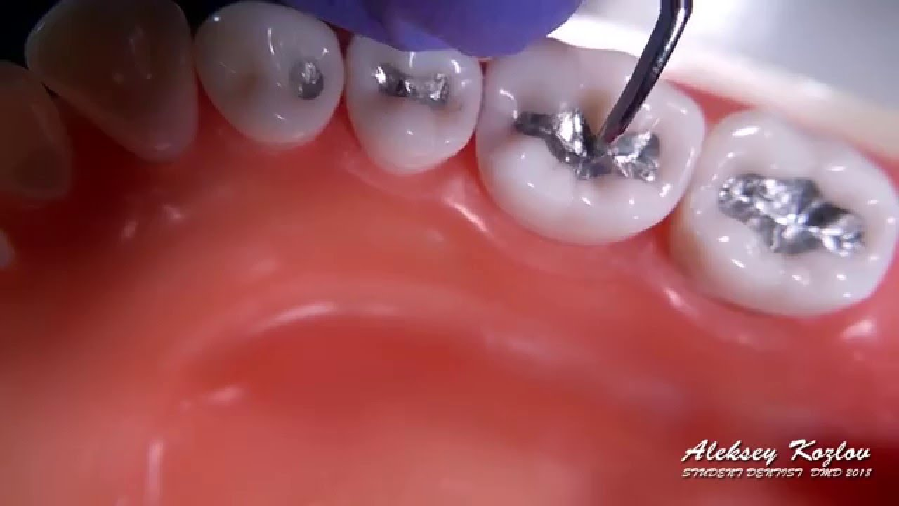 những điều cần lưu ý khi trám răng