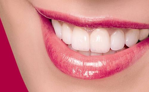 răng sứ titan tại bình thạnh