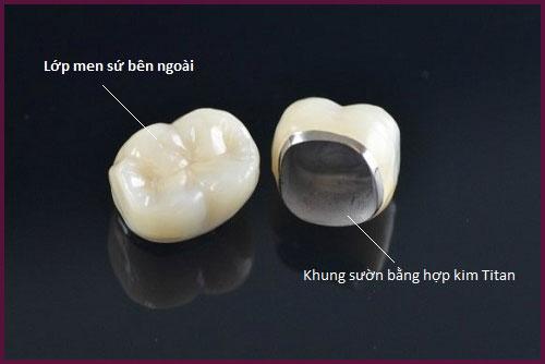 làm răng sứ titan để tiết kiệm chi phí