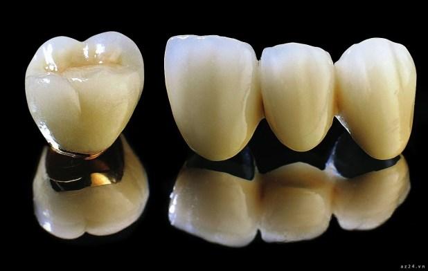 Thời gian sử dụng răng sứ titan từ 10 đến 15  năm