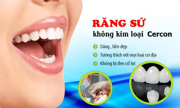 NHA KHOA TITAN - Chuyên răng sứ thẩm mỹ