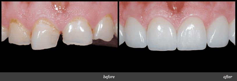 Bảo hành răng sứ titan tại nha khoa titan