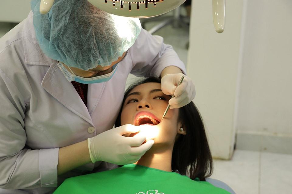 vệ sinh răng miệng trước khi tẩy trắng