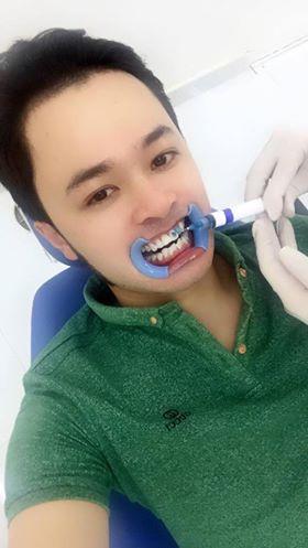tẩy trắng răng tại nha khoa titan bình thạnh