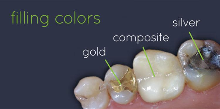 các- chất - liệu - trám -răng