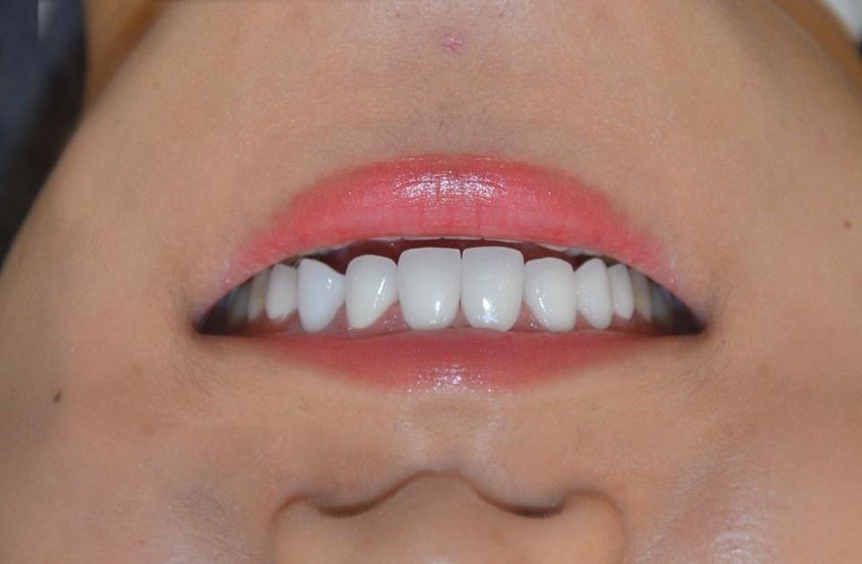 Hình ảnh form răng thỏ bằng chất liệu Zirconia